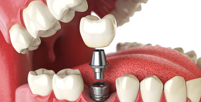 Computer generated graphic of Dental Implant procedure